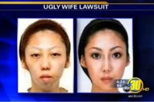 Mujer antes y después de sus cirugías. Foto ABC.
