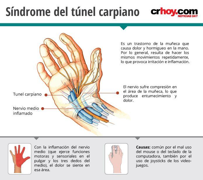 dolor de manos y dedos causas
