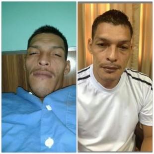 Así se veía la mandíbula de Jean Carlo Aburto, quien fue operado hace dos meses. CRH.
